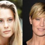 Robin Wright plastic surgery before and after photos