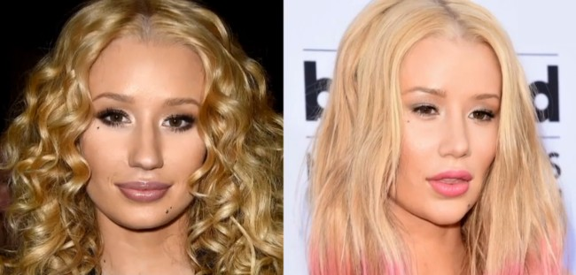 Iggy Azalea before and after nose job and chin implants