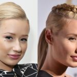 Iggy Azalea before and after nose job plastic surgery