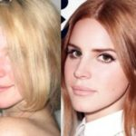 Lana Del Rey before and after plastic surgery 150x150