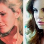 Lana Del Rey difference before and after nose job
