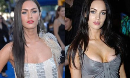 What's the truth about Megan Fox plastic surgery claims?