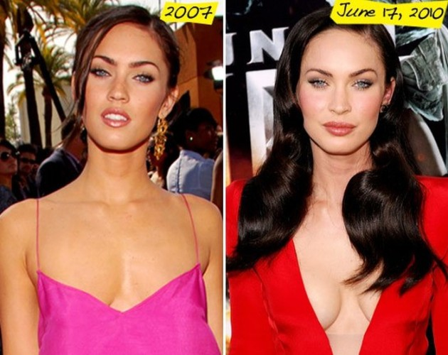 Megan Fox before and after breast implants 630x500