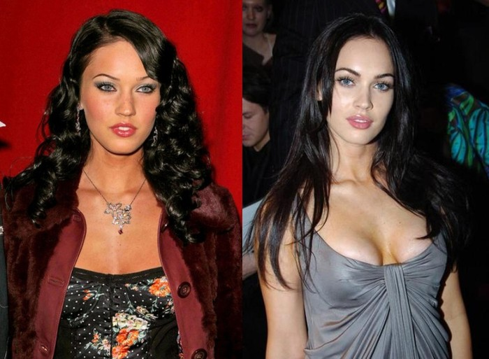 Megan Fox breast implants before and after