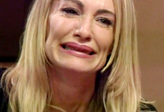 Taylor Armstrong plastic surgery gone wrong