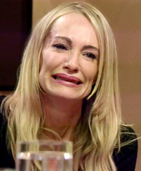 Taylor Armstrong lip fillers
