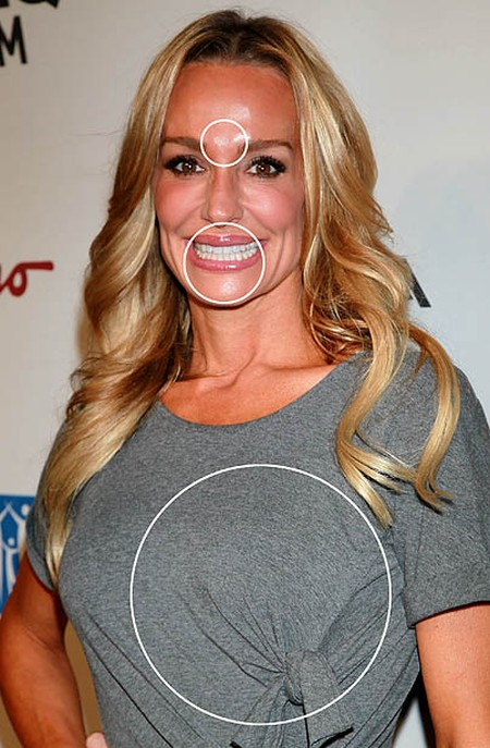 Taylor Armstrong plast...