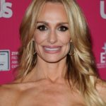 Taylor Armstrong plastic surgery gone bad 150x150