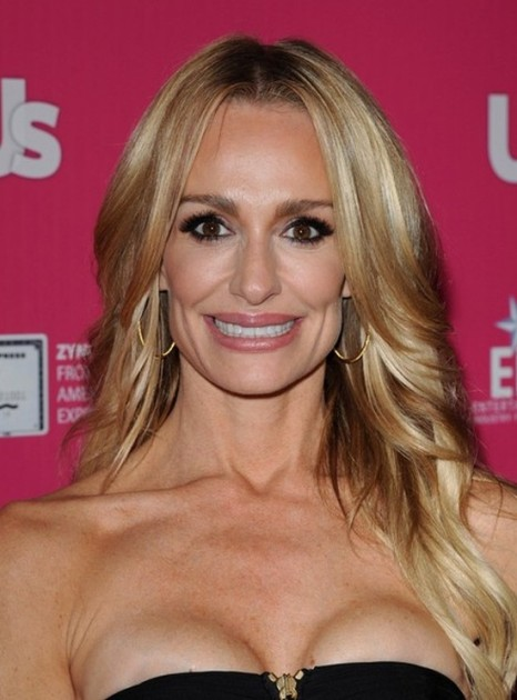 Taylor Armstrong plastic surgery gone bad 466x630