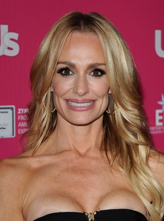 Taylor Armstrong plastic surgery gone bad