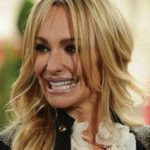 Taylor Armstrong plastic surgery gone wrong 150x150