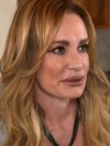 Taylor Armstrong plastic surgery1