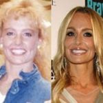 taylor armstrong before and after plastic surgery 150x150