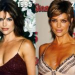 Did Lisa Rinna had a boob job plastic surgery 150x150