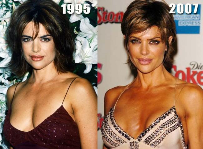 Did Lisa Rinna had a boob job plastic surgery