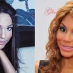 Has Tamar Braxton had any plastic surgery