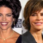Lisa Rinna Before and After Plastic Surgery 150x150