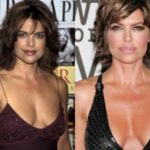 Lisa Rinna Breast Implants Before and After pictures 150x150