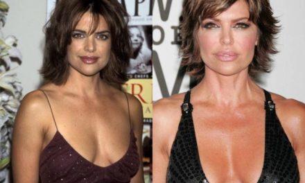 How much Plastic Surgery has Lisa Rinna had over the years?