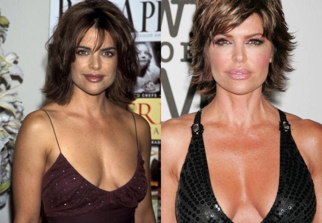 Lisa Rinna Breast Implants Before and After pictures