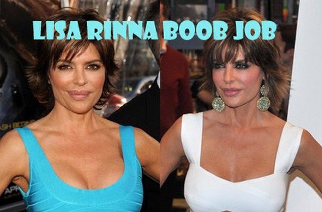 Lisa Rinna Breast Implants Plastic Surgery