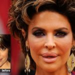 Lisa Rinna before and after lip fillers 150x150