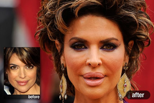 how much plastic surgery has lisa rinna had over the years