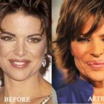 Lisa Rinna before and after lip implants surgery