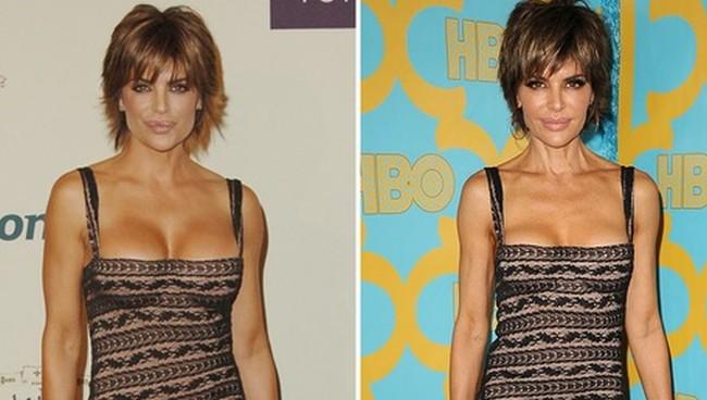 lisa rinna breast size in same dress