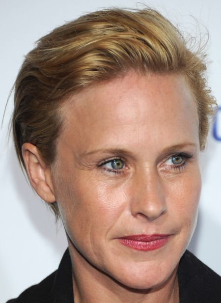 After Plastic Surgery Patricia Arquette Has Overly Smooth Forehead