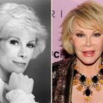 Joan Rivers Before And After Photos 150x150