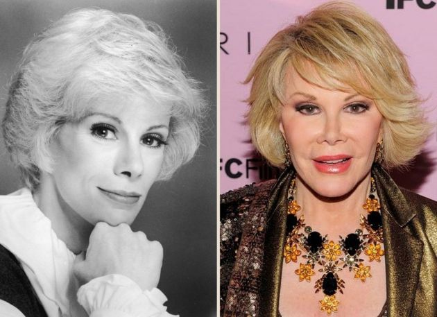 Joan Rivers Before And After Photos