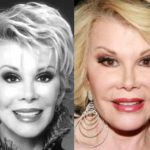 Joan Rivers Before And After Plastic Surgery 150x150
