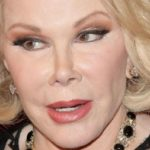 Joan Rivers Botox 150x150