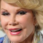 Joan Rivers Eyelid Surgery 150x150
