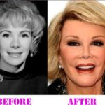 Joan Rivers Nose Job Before And After