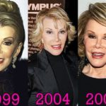 Joan Rivers Plastic Surgery 1999. 2004. 2009. 150x150