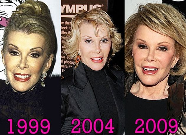 Joan Rivers Plastic Surgery 1999. 2004. 2009.