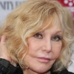 Kim Novak After Botox Injections 150x150