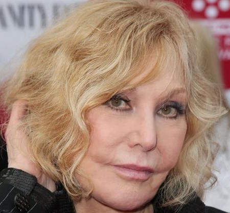 Kim Novak After Botox Injections