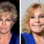 Kim Novak Before And After Botox Injections 150x150