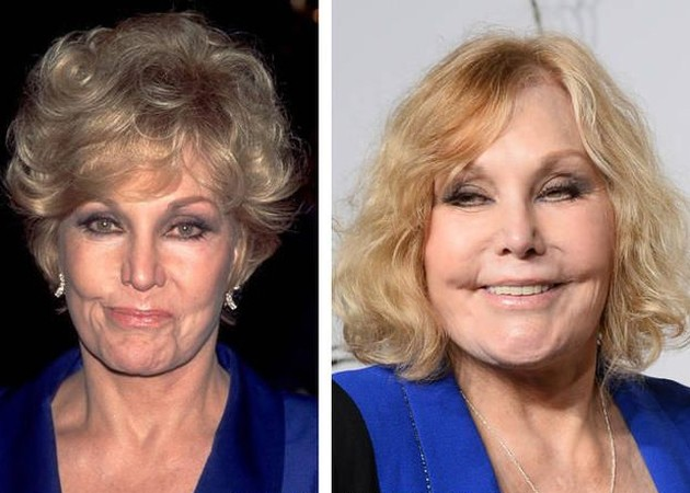 Kim Novak Before And After Botox Injections