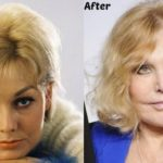 Kim Novak Before And After Cheek Implants