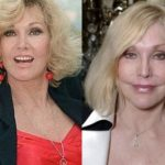 Kim Novak Before And After Plastic Surgery 150x150