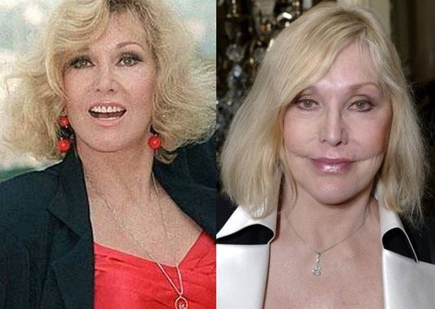 Kim Novak Before And After Plastic Surgery