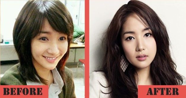 Park Min Young Gets A Plastic Surgery To Boost Her Career