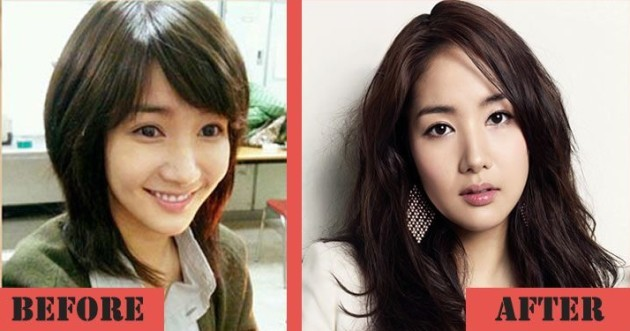 Park Min Young Before And After Nose Job 630x331