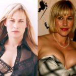 Patricia Arquette Before And After Plastic Surgery 150x150
