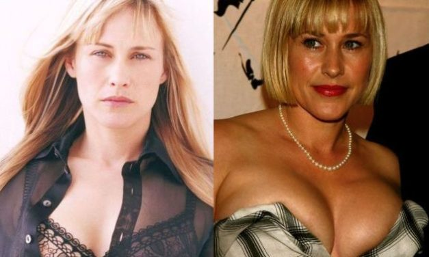 Plastic Surgery Made Patricia Arquette's Forehead Smoother