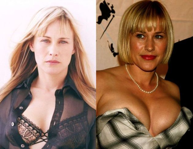 Patricia Arquette Before And After Plastic Surgery